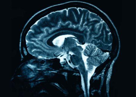 trauma craniana
